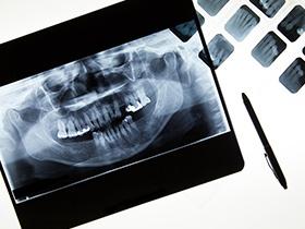 Radiographie et caméra numérique